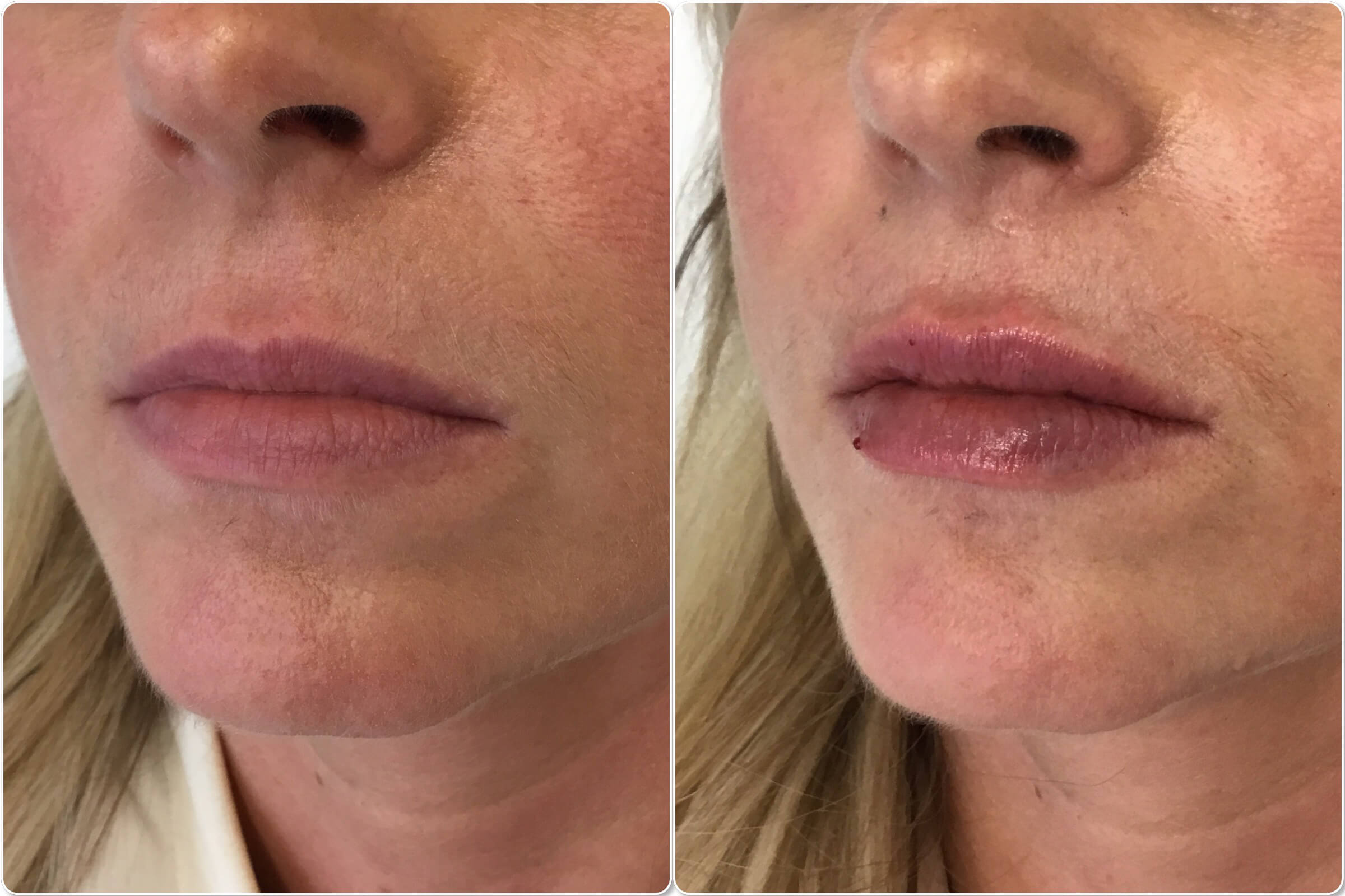 lip augmentation stockport